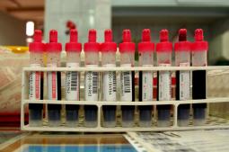 Oddaj krew – pomóż potrzebującym